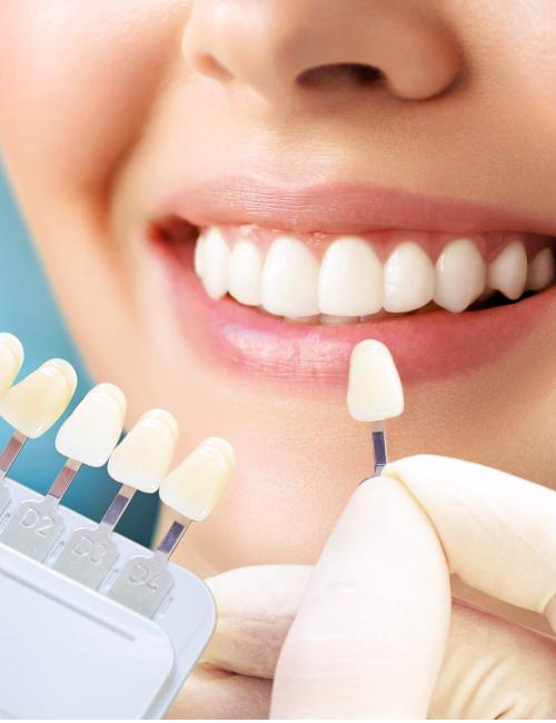 Imagem JPG, Tratamento - Clareamento Dental