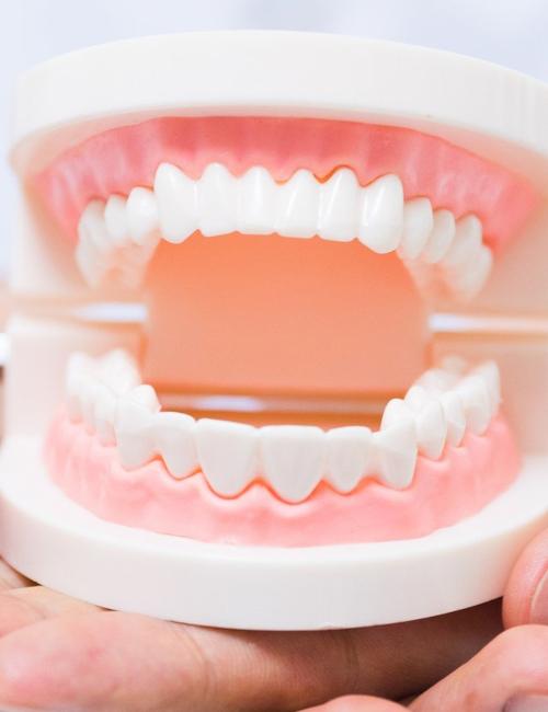 Imagem JPG, Tratamento - Prótese Dentária